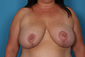 Breast Reduction Before and After Pictures Boca Raton, FL