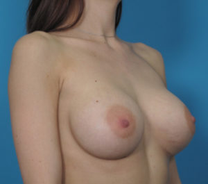 Breast Enlargement Before and After Pictures Boca Raton, FL