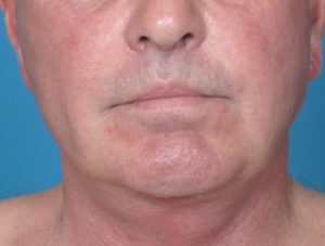 Chin Implant Before and After Pictures Boca Raton, FL