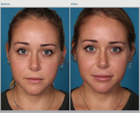 Communication on this topic: How to Determine Your Facial Skin Type , how-to-determine-your-facial-skin-type/