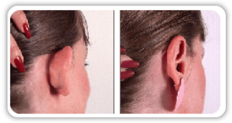 Otoplasty (Ear Surgery) in Boca Raton, FL