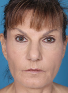 Eco Laser Before and After Pictures Boca Raton, FL