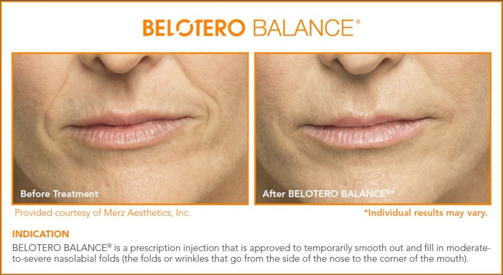 Belotero® in Boca Raton, FL