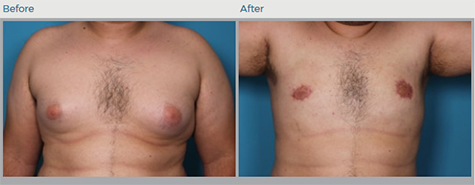 Gynecomastia Before and After Pictures Boca Raton, FL