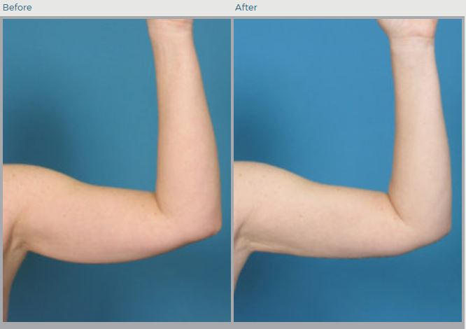 Bracioplasty Before and After Pictures Boca Raton, FL
