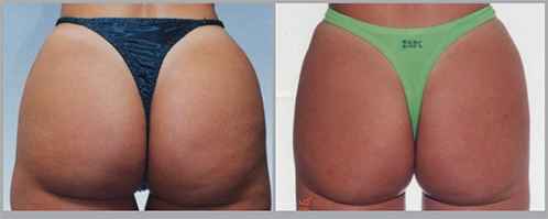 3D Butt Lift Before and After Pictures Boca Raton, FL