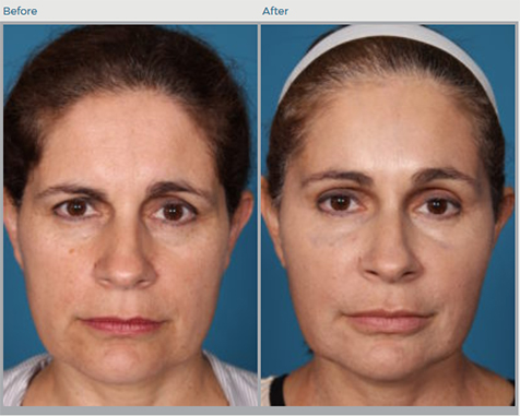 Forehead Lift Before and After Pictures Boca Raton, FL