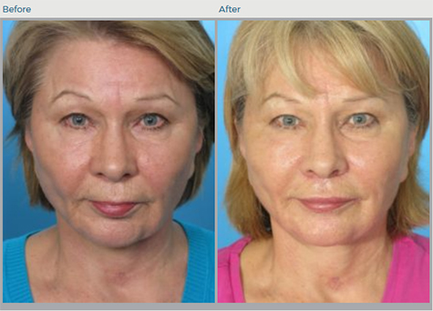 Lip Augmentation Before and After Pictures Boca Raton, FL
