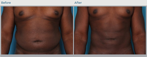 Liposuction, Dr. Daniel Man, Boca Raton