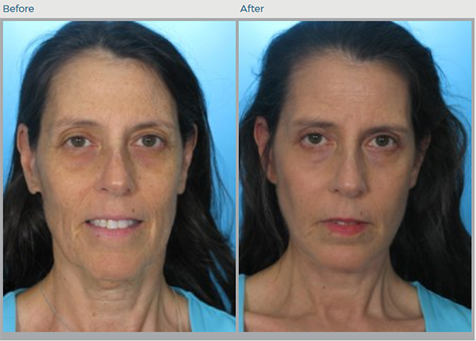 Neck Lift Before and After Pictures in Boca Raton, FL