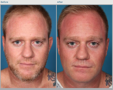Otoplasty Before and After Pictures Boca Raton, FL