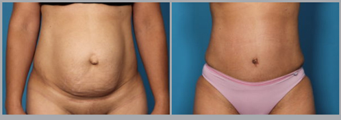 Tummy Tuck Before and After Pictures Boca Raton, FL