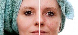 MD Facial Treatments in Boca Raton, FL