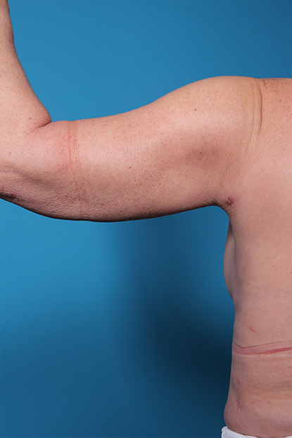 def6476c0e Dr. Man's Patient discusses her Arm Lift Surgery in a Video Review