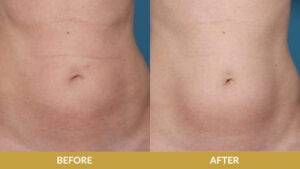 Liposuction Before & After Result | Daniel Man MD | Tickle Liposuction | Boca Raton, FL