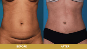 Muscle Tightening Before & After Result | Daniel Man MD | Tummy Tuck | Boca Raton, FL