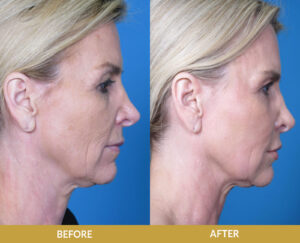 Skin Resurfacing Peel   Daniel Man MD   Sculptra and Fat Transfer   Boca Raton, FL