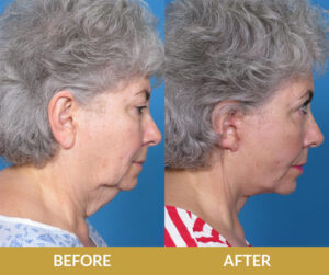 Before and After Result | Daniel Man MD | Face and Neck Lift | Boca Raton, FL