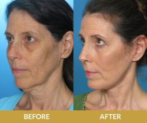 Face and Neck Lift | Daniel Man MD | Dermabrasion and Peel | Boca Raton, FL