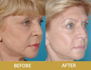Face Lift Before & After Result | Daniel Man MD | Restylane Lyft | Boca Raton, FL