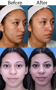 Mask Acne Solution in Boca Raton, Dr. Man